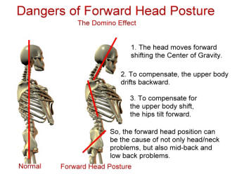 This is how your neck muscles react to forward head posture.