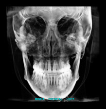 Notice here the bone deposition at the mandibular gonial angles, a sign of years of masseter muscle strain.