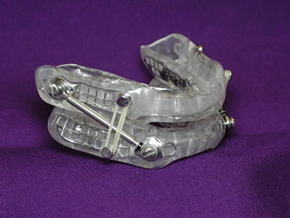The Suad device by Strong Dental Lab.