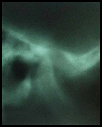 This X-ray shows the mandibular condyle displaced back—in this case, there was also total disc displacement.